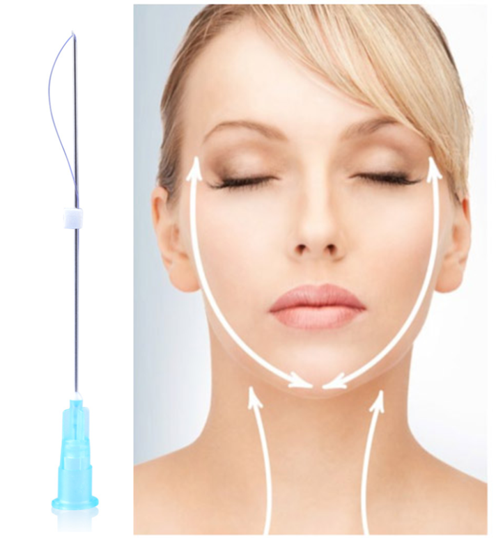 PDO Thread Lift ⋆ Tampa Beauty Salon Anna Esthetics (813)900-1805